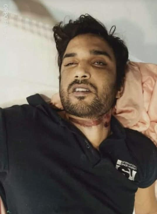 Graphic Leaked Images: Shushant Singh Rajput Commits Suicide